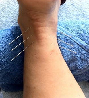 Acupuncture For Edema In Legs - Acupuncture Acupressure Points